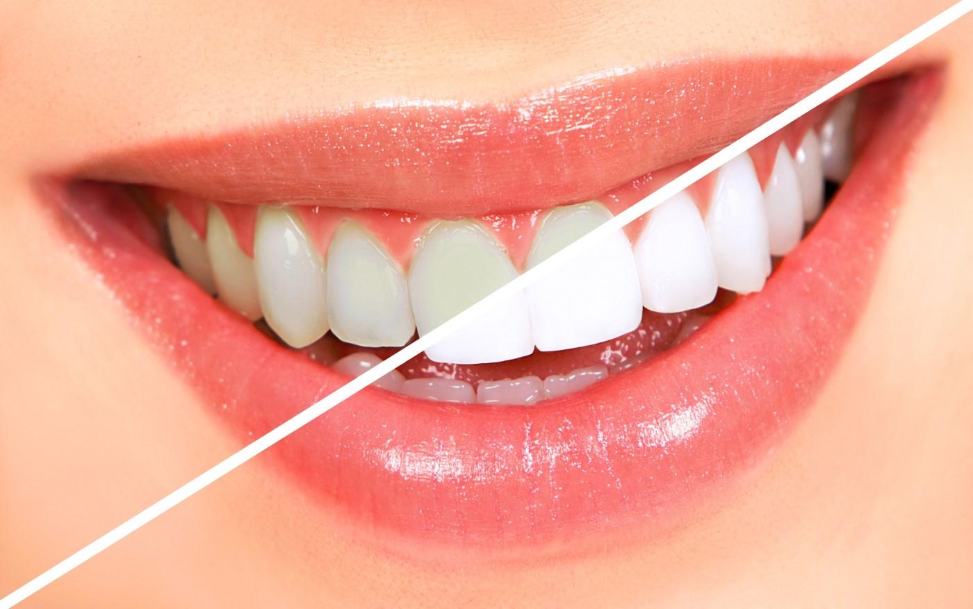 teeth look white