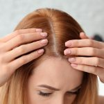 Hair loss or alopecia: when to see a specialist